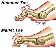 mallet toe treatment